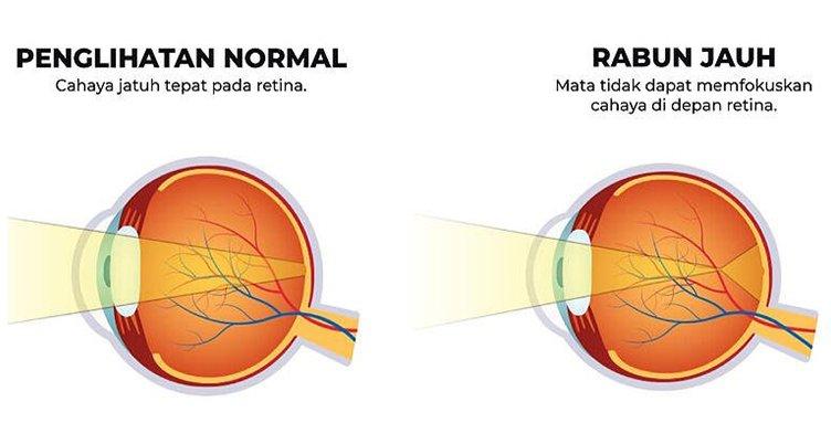 Rabun Jauh (Myopia) Dan Rabun Dekat (Hyperopia)